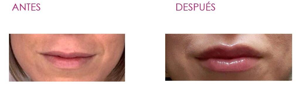 aumento de labios Elche adaBeauty
